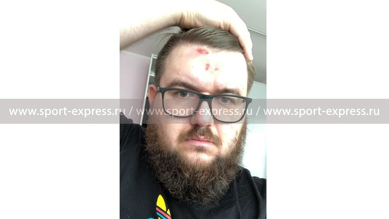 «Яударил болельщика вресторане? абсурд какой-то»— Дмитрий Тарасов