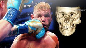 Страшная травма в боксе. Альварес сломал лицо сопернику одним ударом