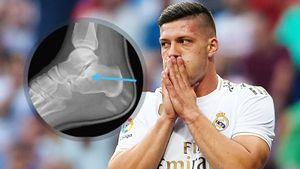 Форвард «Реала» Йович получил перелом, упав со стены дома