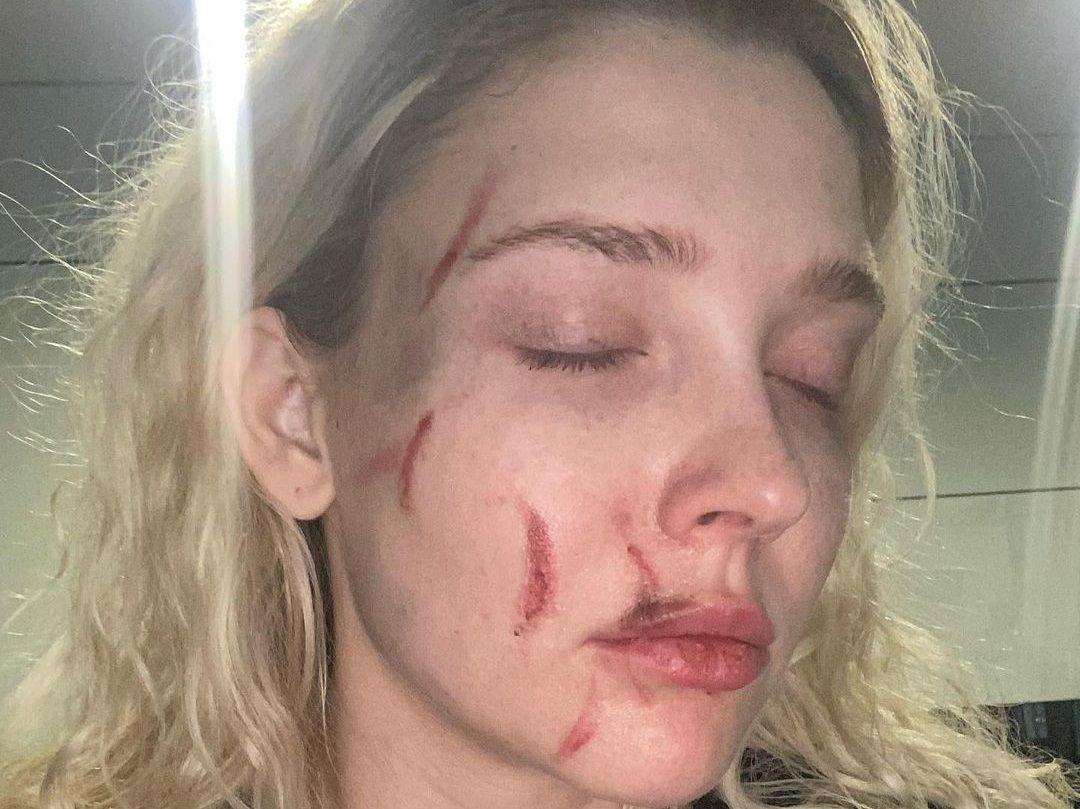 Дочь Кафельникова в ужасе от жестокого избиения российской актрисы: «Уроды! Неадекватные животные»