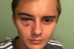 «В глаз прилетел локоть, а судья сказал: «Хватит валяться». «Ростов» показал травму Зуева