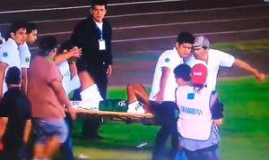 В Боливии получившего травму футболиста отвезли в больницу в багажнике такси