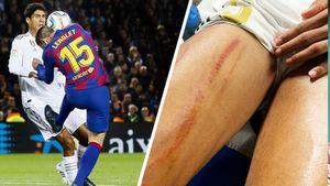 «Реал» возмущен судейством в матче с «Барселоной». Судья не назначил 2 пенальти: фотодоказательства