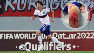 Сборная России выложила фото окровавленного колена Марио Фернандеса после матча с Мальтой