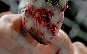 Боец UFC «станцевал локтями» на лице соперника. Последствия ужасают