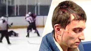 «Он шел на убийство». Кровавая драка в русском хоккее: избиение клюшкой по голове — видео
