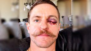 Игроку американского клуба зарядили клюшкой в глаз. Теперь на его лицо страшно смотреть